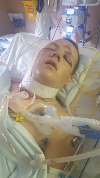 Man on life support in hospital